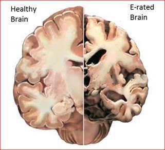 erate brain